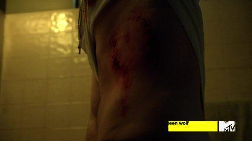 gnarly scar